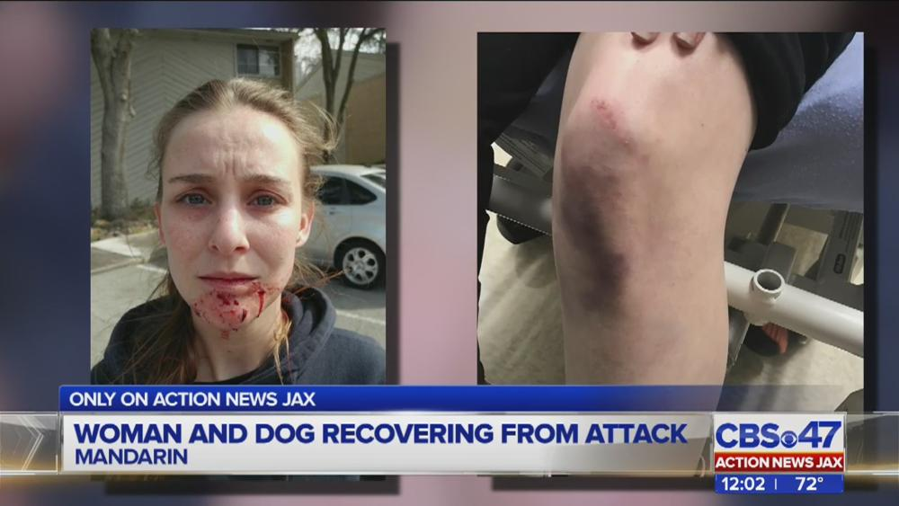 Lady, dog dealing with dog attack in jacksonville lady-dog
